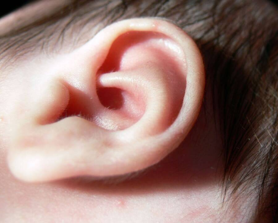ear infection Otitis media is a group of inflammatory diseases of the middle ear the two main types are acute otitis media (aom) and otitis media with effusion (ome.